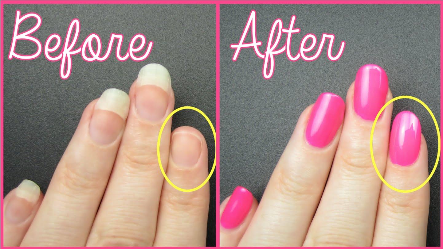 Nail Repair: Nail Repair For Broken Nails