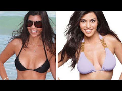Cup Size Before B Cup Size After C Implant Info Round Saline layout Description Patient had breast augmentation by board certified plastic surgeon Dr Larrry